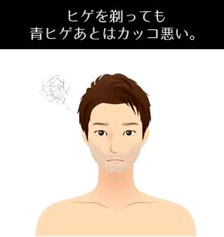 ヒゲを剃っても青ヒゲあとはカッコ悪い。